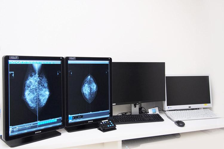 写真:乳腺専用ワークステーション