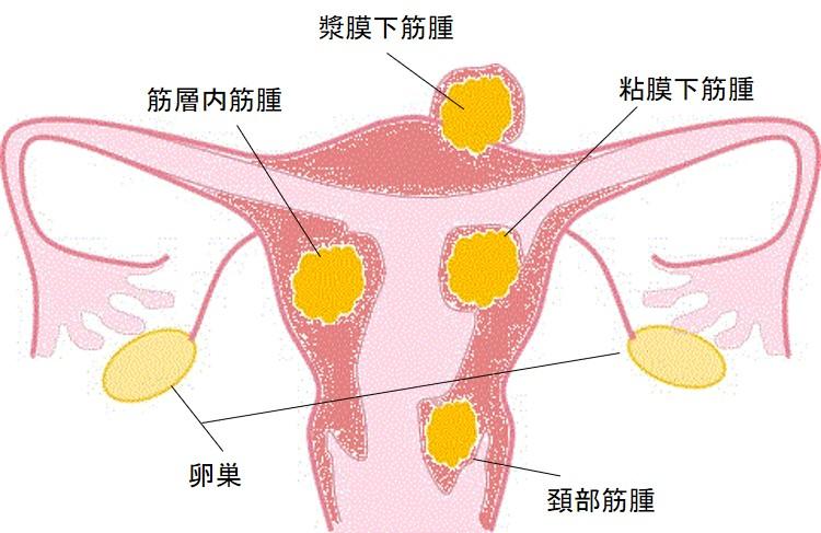 子宮の病気 良性